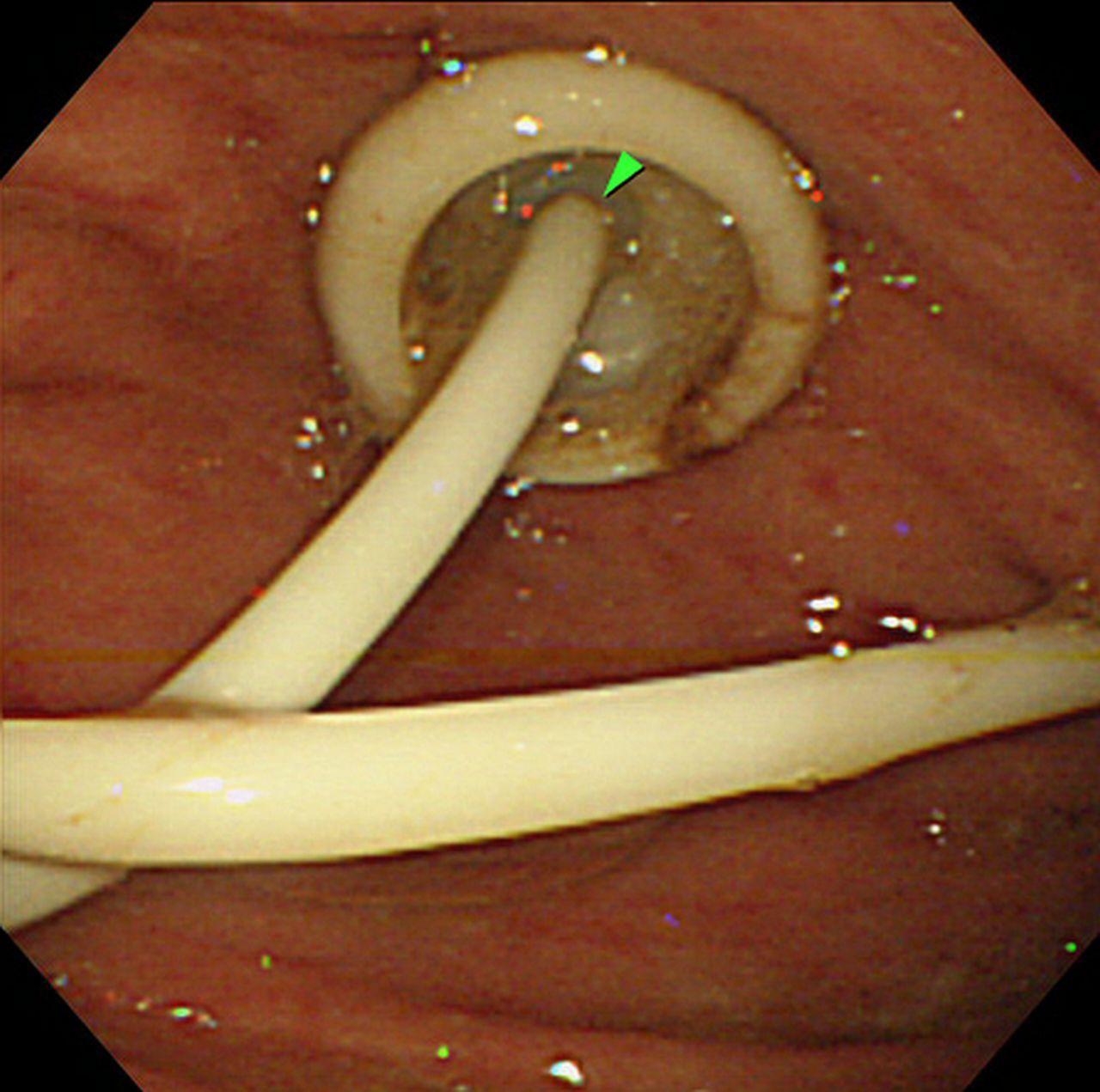 percutaneous endoscopic transgastric jejunostomy  peg