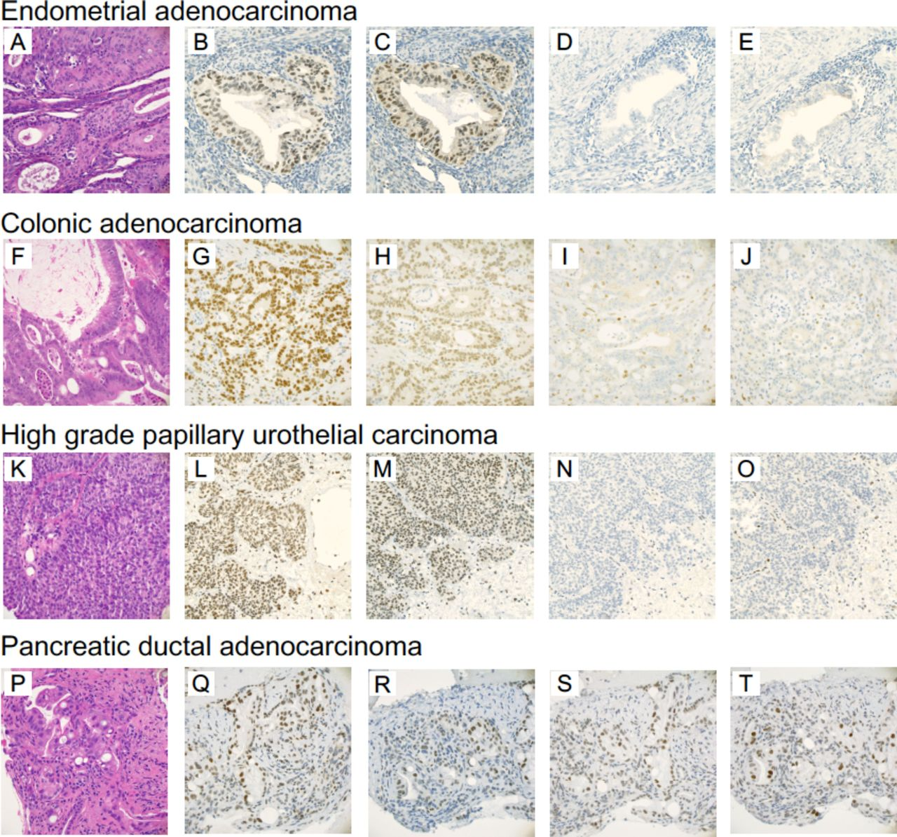 Pancreatic cancer 'mismatch' in Lynch syndrome | BMJ Open