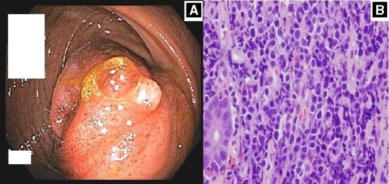 Gastrointestinal Lymphoma The New Mimic Bmj Open Gastroenterology